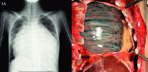 enlarged heart chest ray cardiomegaly shows marked extremely film autopsy fig balloon diagram enormous thoracotomy intrapericardial reveals