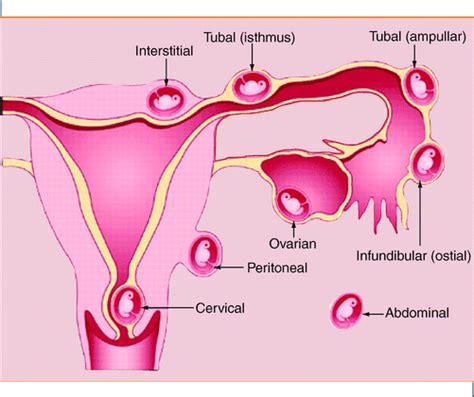Gambar Rahim Wanita Yang Normal Kehamilan Ektopik Ekakumalasari12