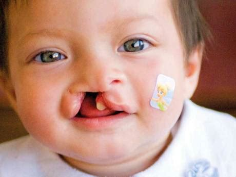 Cleft Lip Charity We Work Charity Offers Free Cleft Palate And Lip Surgeries In Uae