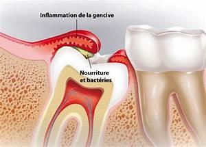 Symptome Dent De Sagesse : op ration des dents de sagesse h pital priv d 39 antony ~ Maxctalentgroup.com Avis de Voitures