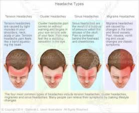 Types of Headaches - ... types of headaches including tension ... Tension-Type Headache