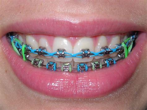 best colors for braces the 25 best braces colors ideas on