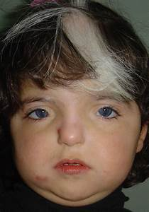 Waardenburg Syndrome  Causes  Symptoms  Treatment