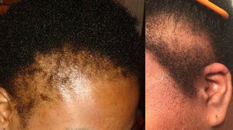 NATURAL HAIR HORROR STORY! NO EDGES! My Natural Hair is