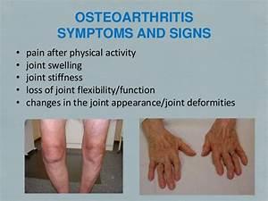 osteoarthritis knee treatment food
