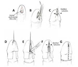 Meatal mobilization and glanuloplasty: A viable option for coronal and ... Meatal stenosis