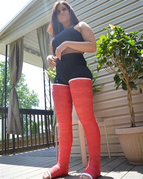 Dllc Legcast Llc Cast Leg Legs Castfetish Bodycast