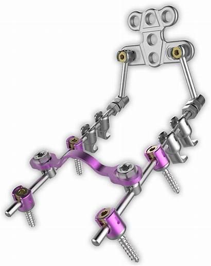 System Spinal Cervical Posterior Spine Stabilization Spinemarketgroup