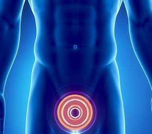 Лечение аденомы простаты нуга бест
