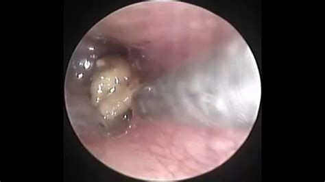 endoscopic suction clearance  fungal debris  ear