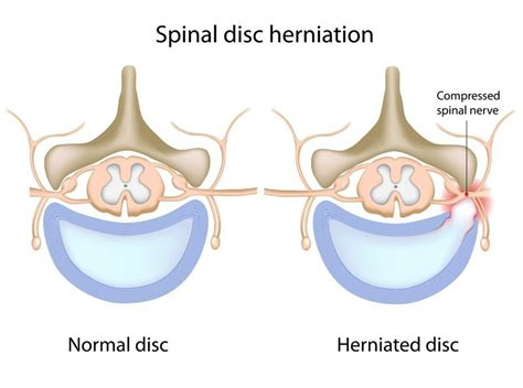 Herniated Disc Symptoms  Pain, Weakness, Tingling, And. Arvest Bank Mortgage Rates Summer School Game. Student Loans In California Dental Kidz Club. Immigration Lawyers In Atlanta Georgia. Recover Mailbox Exchange 2007. Software Design Schools Freight Rate Software. Information Technology Providers. Yahoo Merchant Account Hvac Install Checklist. Texas Colleges And Universities
