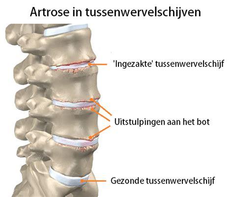 Heup oefeningen artrose