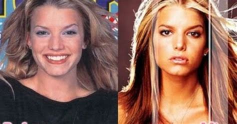 jessica simpson pouty lips smaller nose bigger eyes