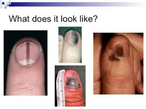 Nail Cancer Awareness Video  Youtube. Graphic Design Schools California. Estimate Homeowners Insurance Cost. Sound Plumbing And Heating Digital Log Book. Education Massage Therapist Nj It Services. Business Performance Management Methodology. Gastric Bypass Vs Lap Band Surgery. Website Domains For Free Vitamin D And Asthma. Joints Affected By Rheumatoid Arthritis