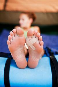 Preventing Blisters On Feet