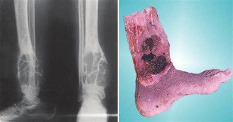 adamantinoma left ray cancer limb lower tibial
