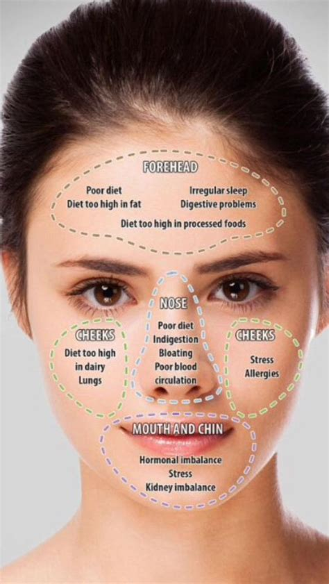 acne chart beauty acne skin face mapping natural skin care
