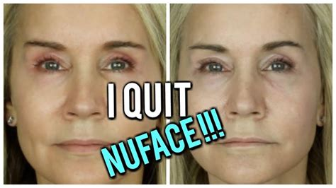 NUFACE RESULTS | BEFORE AND AFTER PICS | Nuface, Facial