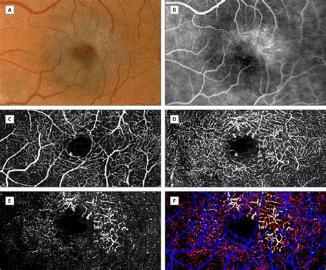 retinal vascular layers  macular telangiectasia type