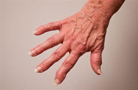 arthrose der fingergelenke rheumaliga schweiz