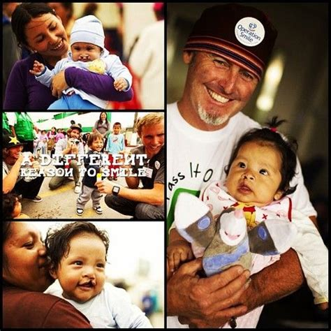 Cleft Lip Charity We Work 37 Best Sanuk Operation Smile Images On