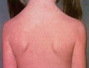 Rubella (German Measles) - body, last, viral, contagious ...