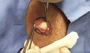 WATCH: Now Dr Pimple Popper pulls cyst the size of a GOLF ...