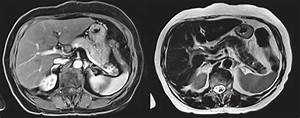Abdominal Magnetic Resonance Imaging  T1 And T2