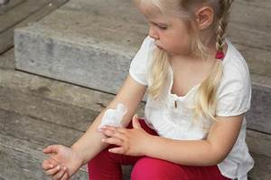 What Is Topical Steroid Withdrawal Syndrome And How Do I Prevent It   U2013 Eczema Life