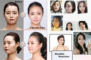 Plastic Surgery Before and after Archives - Seoul Guide ...