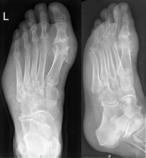 arthritis gouty symptoms treatment