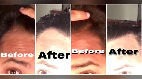 6 Month Derma Roller + Minoxidil Hairline Update / Hair