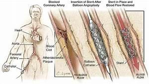 Percutaneous Coronary Intervention  Causes  Symptoms