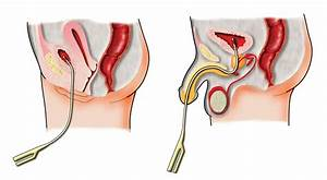 Suprapubische katheter verwisselen video