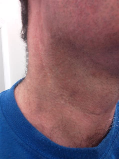 Neck Dissection Surgery Scar