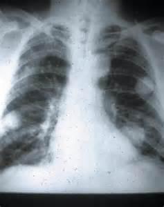 Rheumatoid Arthritis Nodules On Lungs