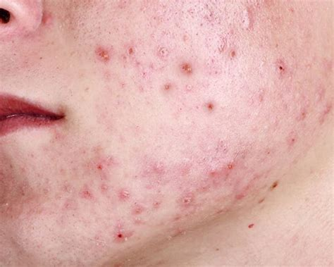 pimples acne  york skin solutions