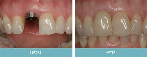 dental implants dundrum dental surgery