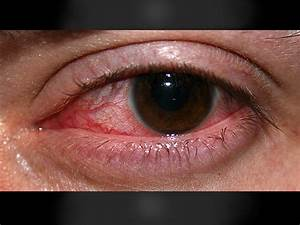 Steroids Early In Bacterial Keratitis May Improve Vision