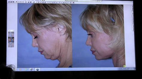 Lift facelift