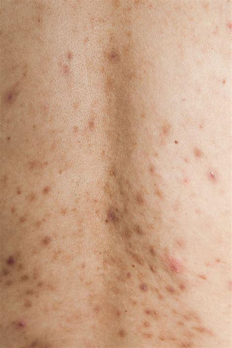 post inflammatory hyperpigmentation  acne