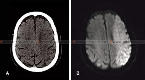 min ischemic stroke transient ischemic attack tia
