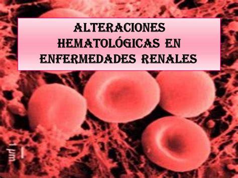 complicaciones cardiovasculares  hematologicas