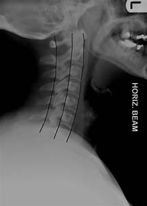 Cervical Spine Trauma Evaluation - Spine