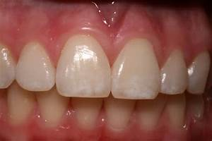 The Role Of Stannous Fluoride In Maintaining Oral Health
