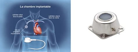 gripper chambre implantable chambre implantable port a cath videolike port o cath