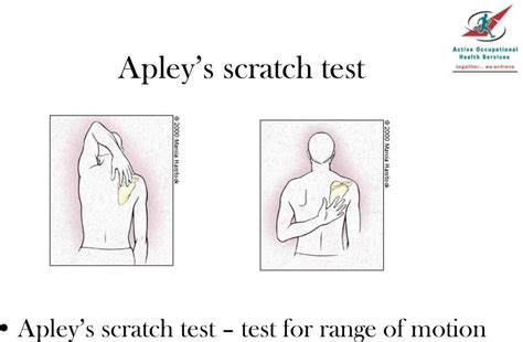 Apley S Scratch Test Pictures To Pin On Pinterest