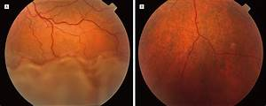 Bilateral Serous Retinal Detachment Due to Protein-Losing ...