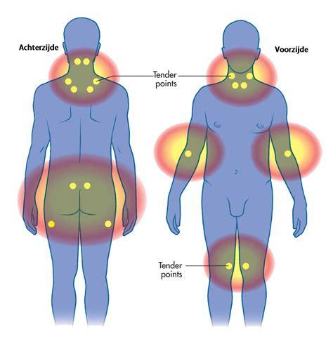 Pijn In Onderbuik: Symptomen, oorzaken behandeling