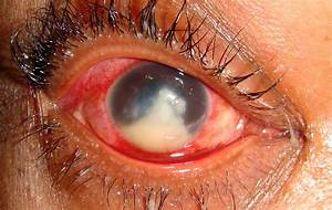Severe Microbial Keratitis Due To A Filamentary Fungal Inf